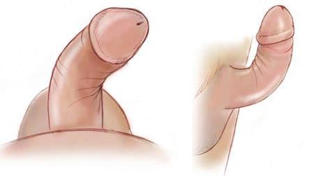 Como é possível aumentar rapidamente para aumentar um pênis